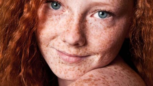 8 Things You'll Never Look At Freckles The Same Way Again