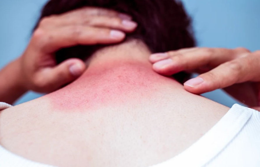 7 Problems Against Which Sunscreen Protects Your Skin